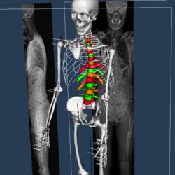 SimTK: Bi-planar radiography-based skeletal modeling platform used