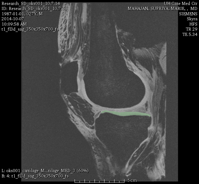 Tibia Cartilage (Medial) Segmentation
